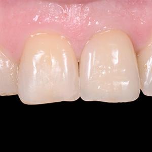 Esthétique et implant Cas N°1