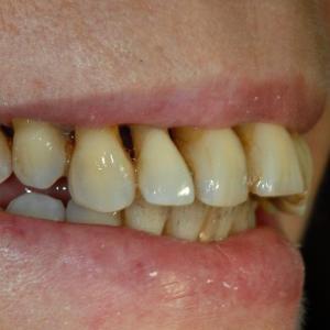 parodontie stade terminal